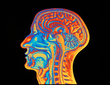 Coloured MRI scan of the human head (side view)