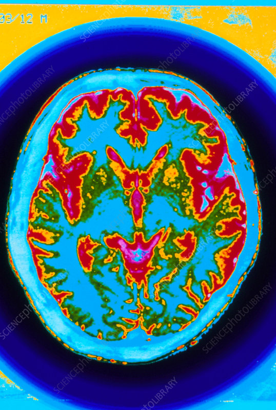 Coloured axial MRI scan of a healthy human brain