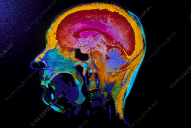 Coloured CT scan of sagittal section of the head