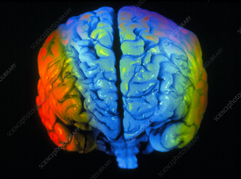 Coloured 3-D MRI scan of a brain seen from front