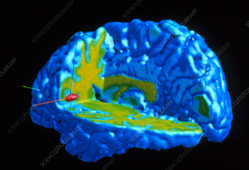 Coloured PET scan of brain responding to pain
