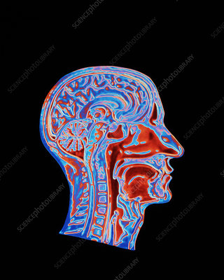 Coloured CT scan of a head showing a healthy brain