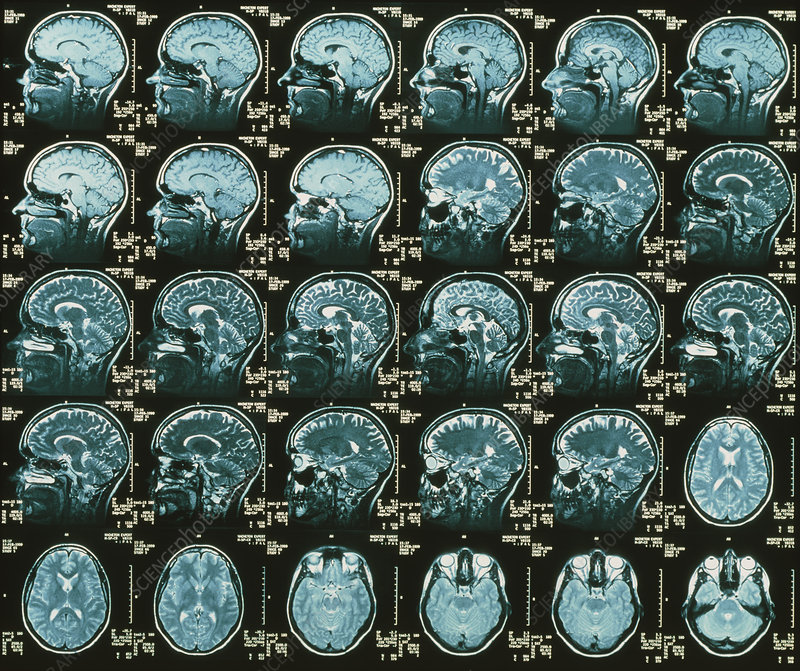 MRI scans of the human brain multiple vie