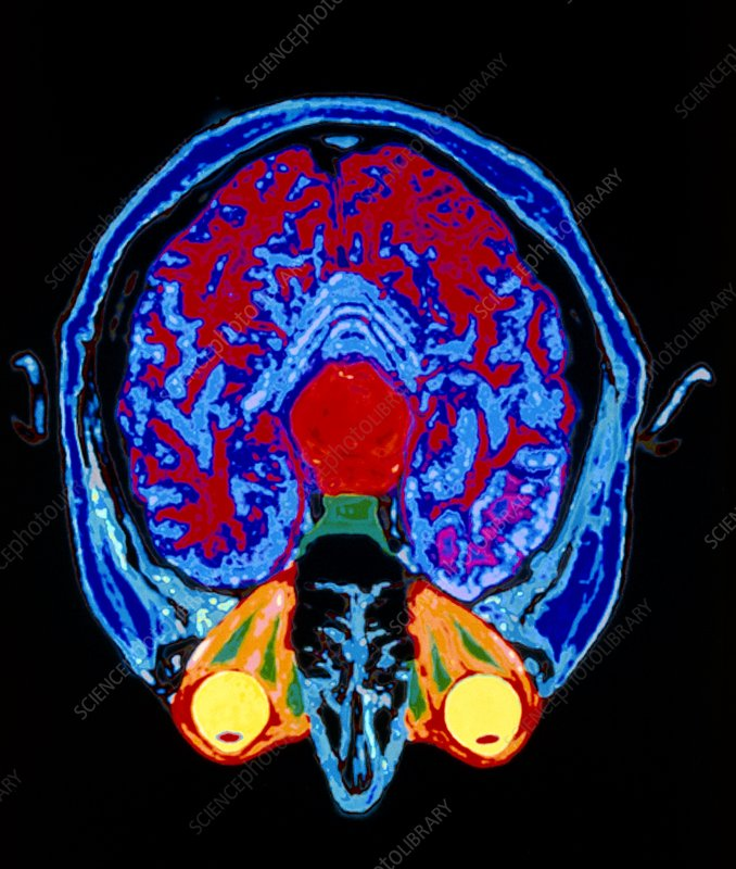 Coloured MRI scan of axial section through head
