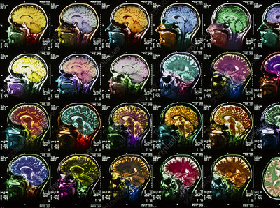 Coloured sagittal MRI scans of the human brain