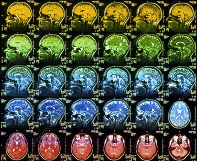 Coloured MRI scans of a healthy human brain
