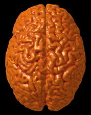 Child's brain, 3-D MRI scan