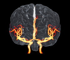 Brain and arteries, 3-D MRA scan