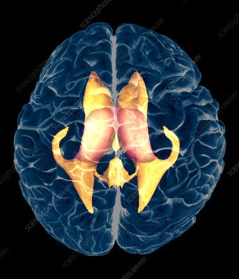Ventricles of brain, MRI
