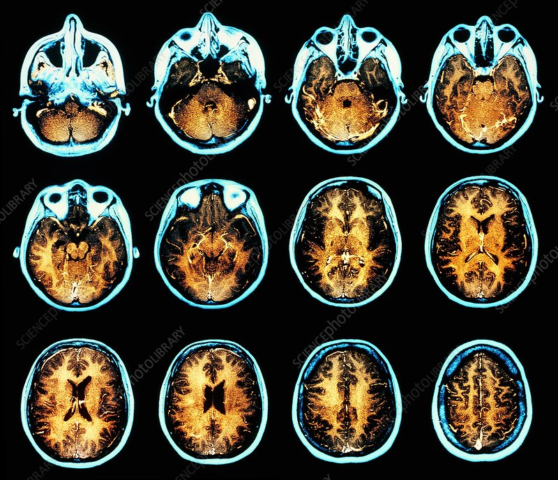 Brain anatomy, axial MRI scans - Stock Image P332/0383 - Science ...