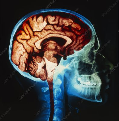 MRI brain scan on skull X-ray