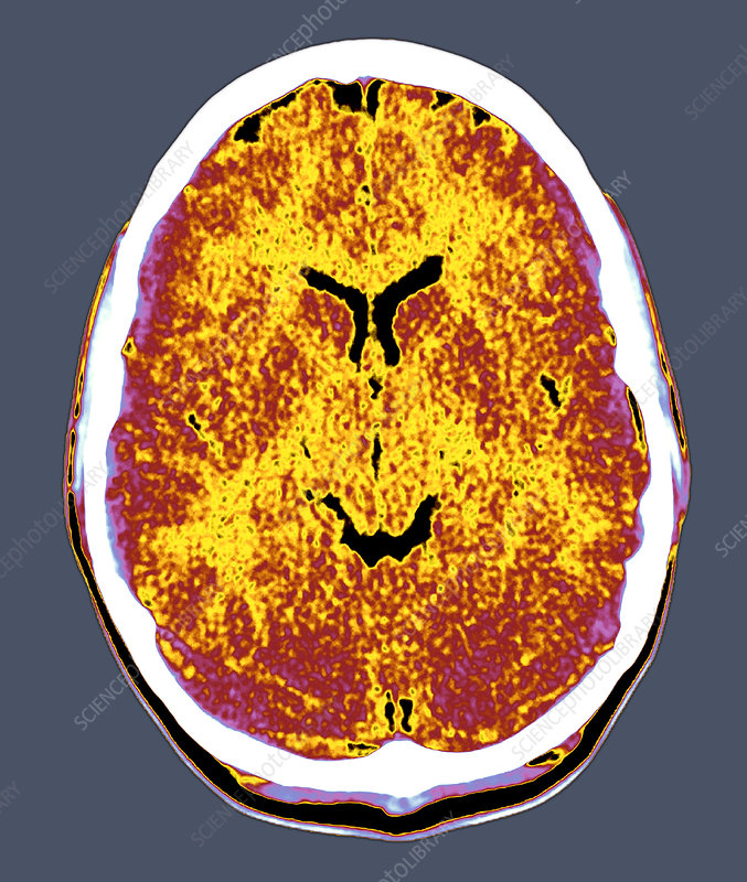 Healthy brain, CT scan