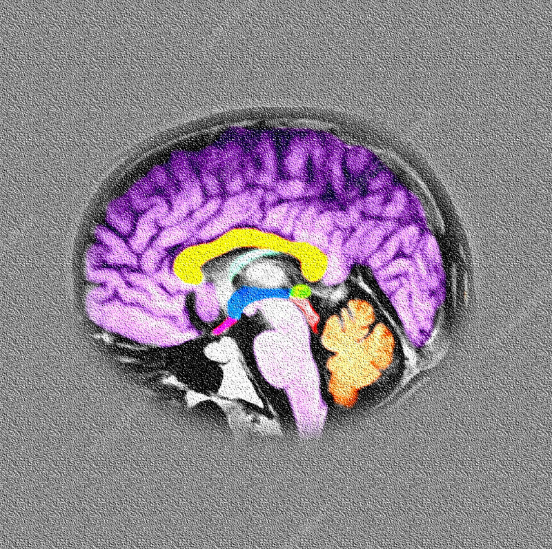 Sagital View of the Normal Human Brain - Stock Image - P332
