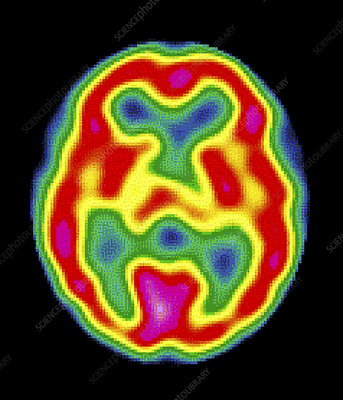 Detection of Early Changes in White Matter Degeneration