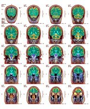 Healthy brain, MRI scans