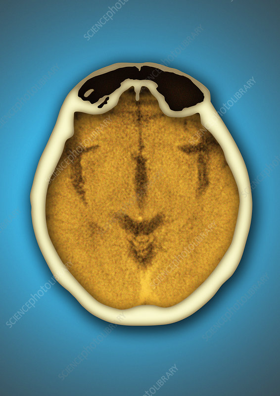 Healthy brain and frontal sinus, CT scan