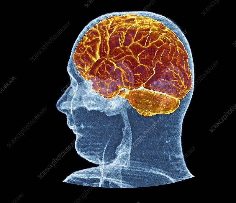 brain mri scan 3d - photo #10