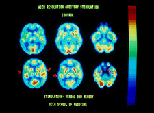 PET scans of brain during auditory stimulation