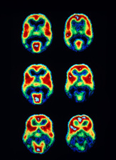 PET scans of the human brain during light stimuli