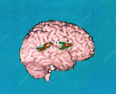 Colour PET brain scan showing verbal memory areas