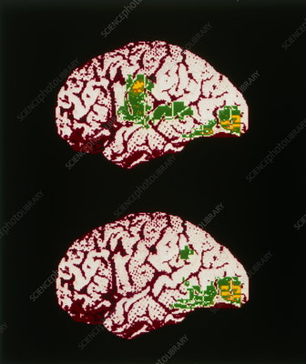 Colour PET brain scan when reading aloud/silently