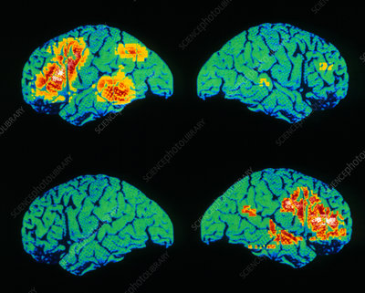 Colour PET scan of language areas of the brain