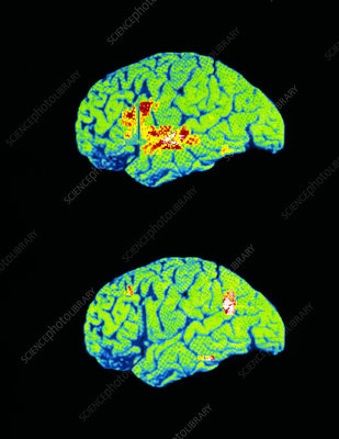 Coloured PET brain scans when recognising words