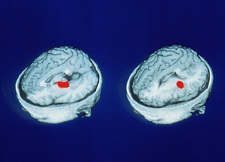 PET scans showing accurate word memory