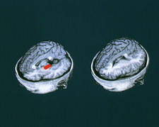 PET scans showing mistaken word memory