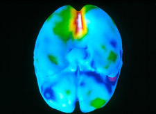 Coloured 3-D PET brain scan during visual activity