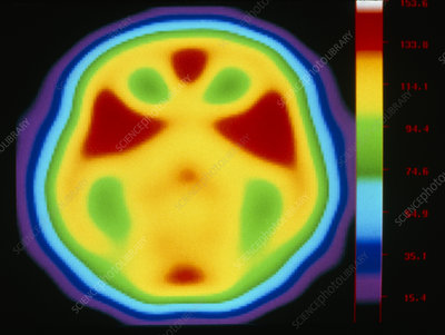 Coloured PET brain scan during listening exercise