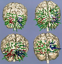 Functional map of the brain's visual cortex areas