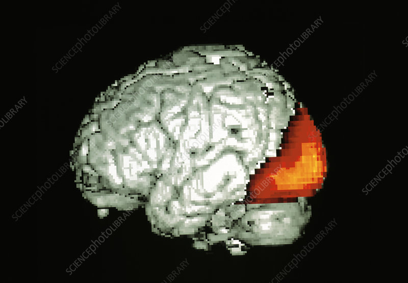 Brain viewing images
