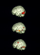 Image-processing brain activity