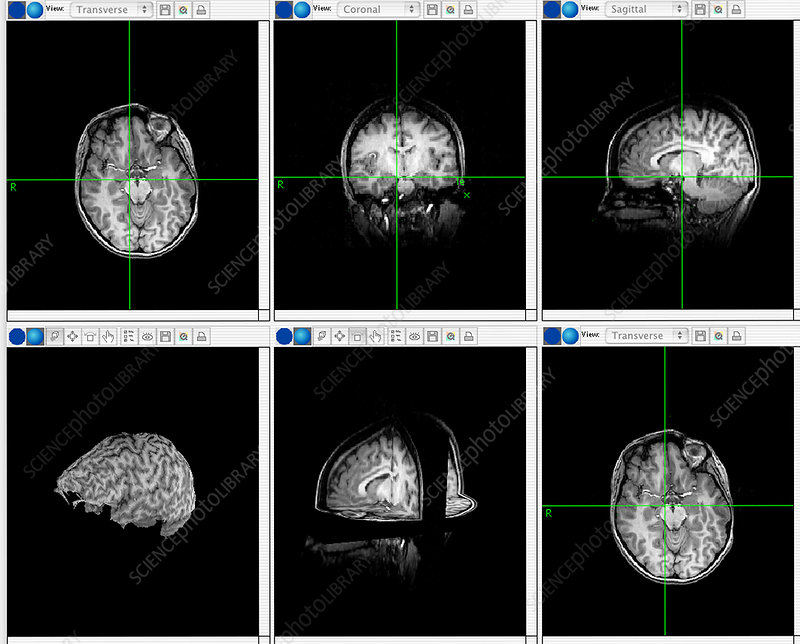 Brain mapping scans