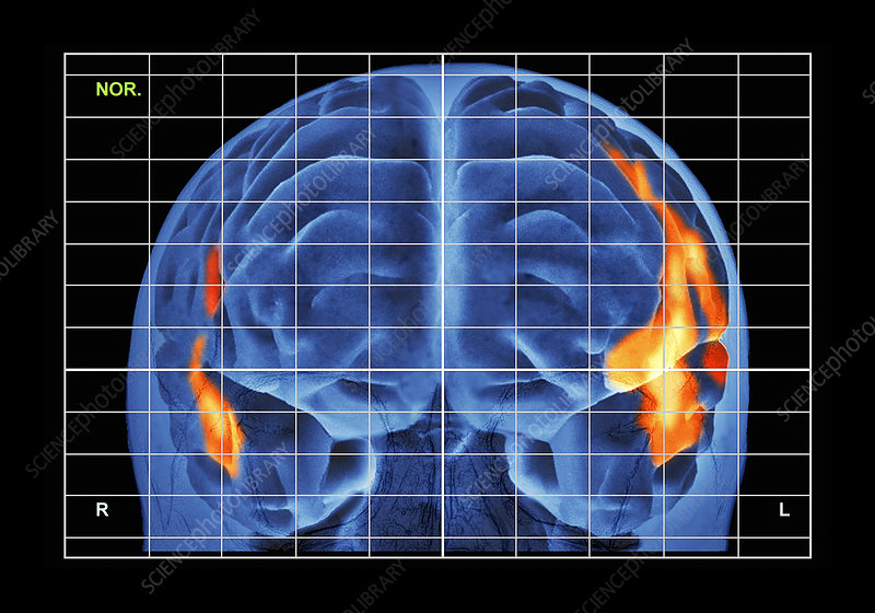 Brain activity during reading, PET/MRI
