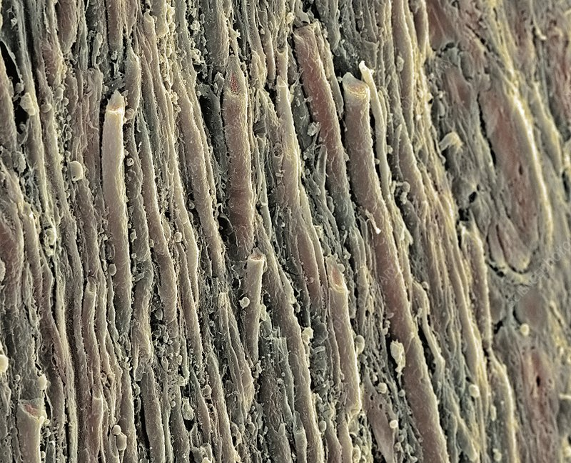 Spinal cord, SEM