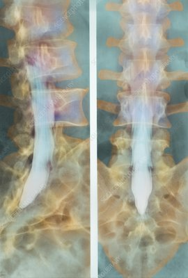 Normal spinal cord, X-ray