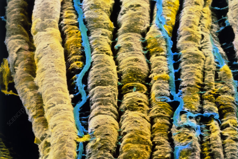 False-colour SEM of bundle of nerve fibres