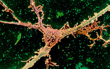 Colour SEM of oligodendrocyte attached to a nerve