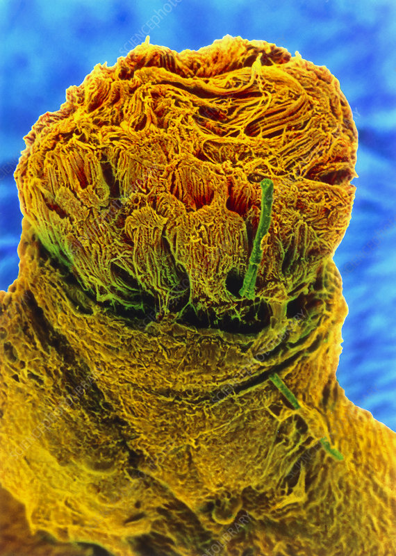 Coloured SEM of nerve fibres and perineurium