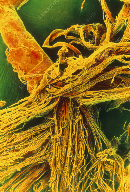 Coloured SEM of nerve fibres and their perineurium