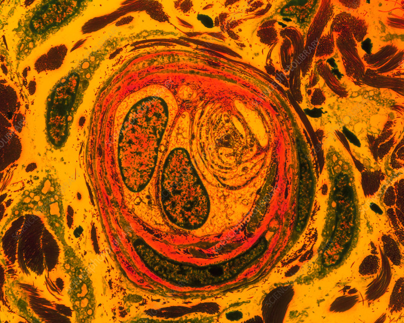 Coloured TEM of sensory nerve ending in the penis