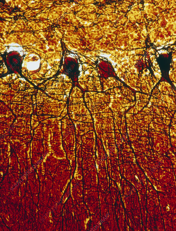 LM of nerve cells in the human brain
