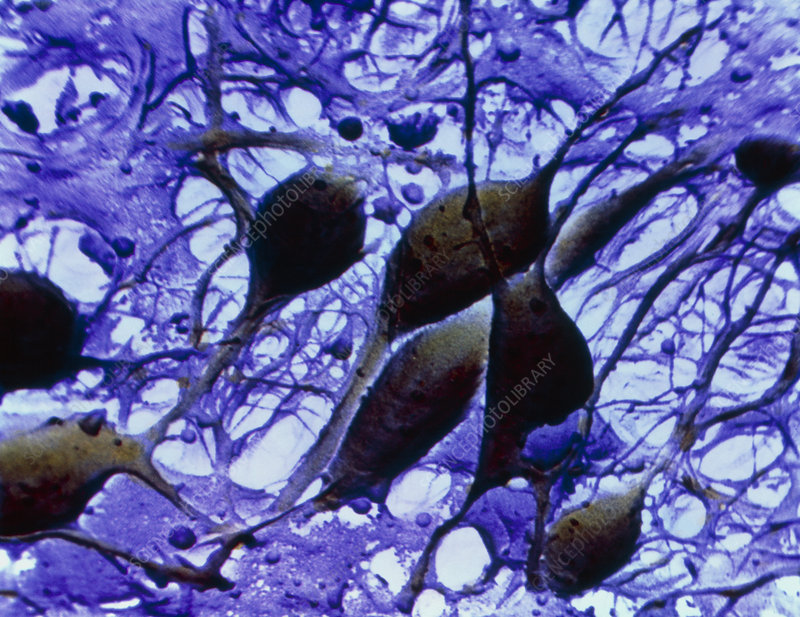 False-colour SEM of neurones from cerebral cortex