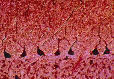 LM of a nerve tissue from the cerebellum