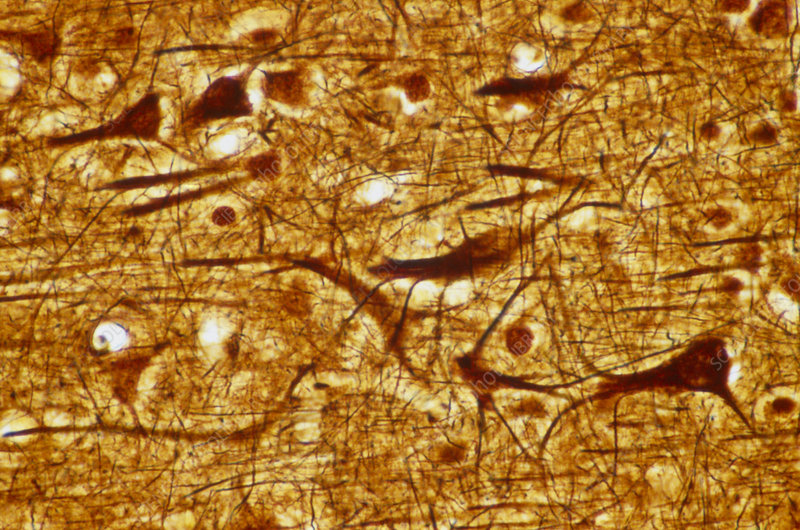 Human cortical pyramidal cells, Bodian stain.