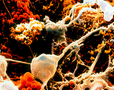 SEM of neurones and glial cells