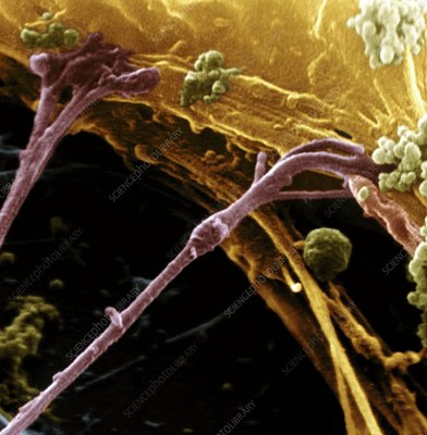 Coloured SEM of synapses on a nerve cell