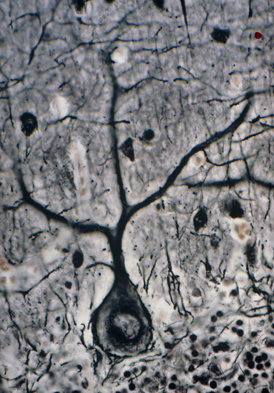 LM of a Purkinje cell in the cerebellum